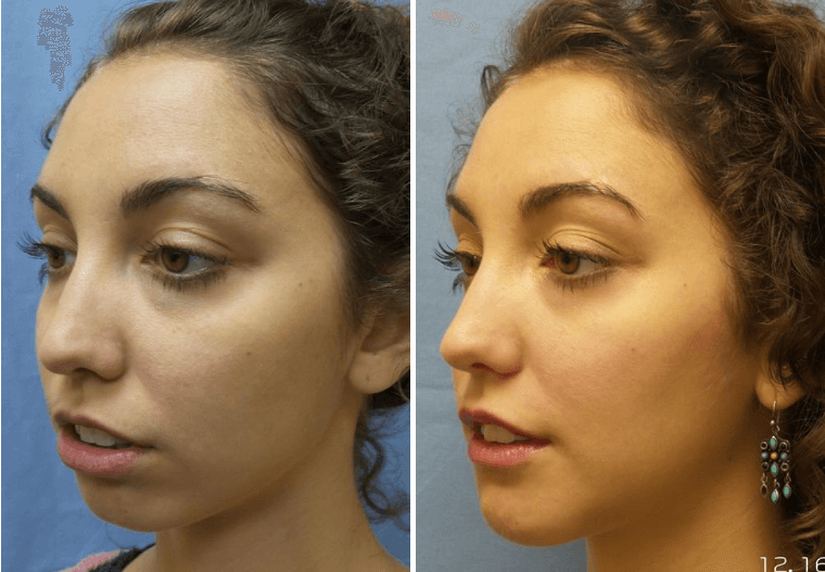 Chin Augmentation Daytona Beach