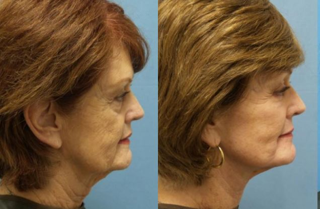 Neck lift Daytona Beach